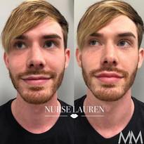 Male patient lip filler