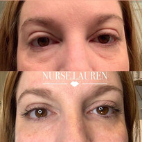 👀Under eye filler with cannula technique