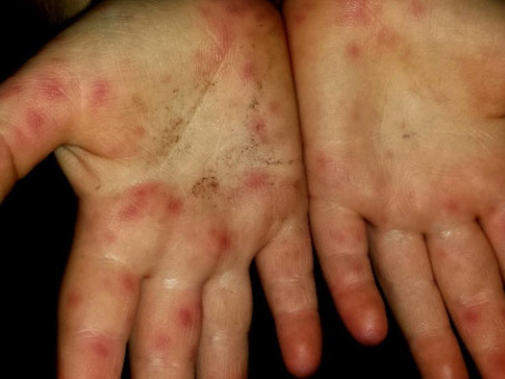 BỆNH TAY CHÂN MIỆNG (HAND, FOOT AND MOUTH DISEASE)