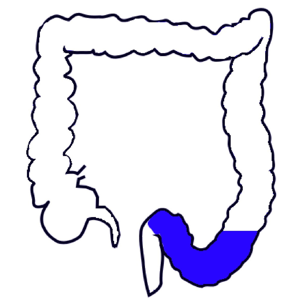 Sigmoid Colon Pelvic Colon
