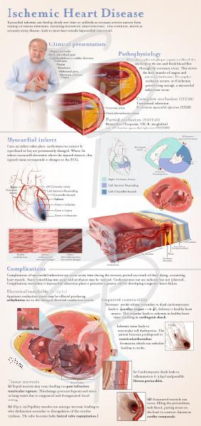 Ischeic heart disease