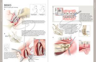 BSSO surgery