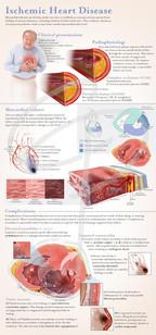 Ischemic heart disease poster