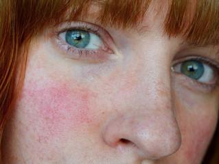 Maquillaje para Piel con Rosácea
