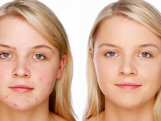 Consejos de Maquillaje para Pieles con Acné