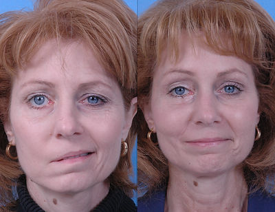 Myasthenia Gravis Before and After