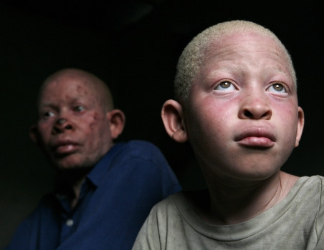 Journée de sensibilisation à l'albinisme