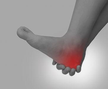 足底腱膜炎.jpg