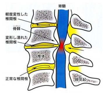 頚椎症.jpg