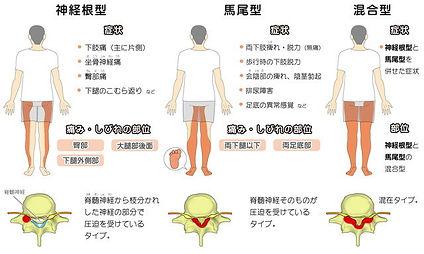 脊柱管狭窄症 分類.jpg