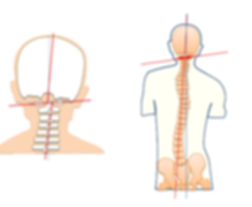 骨盤 脊椎歪み.png