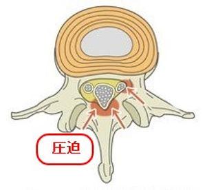 腰部脊柱管狭窄症 混合型.jpg