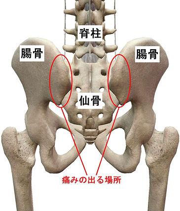 仙腸関節炎.jpg