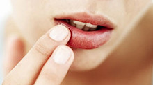 Say bye to dry lips