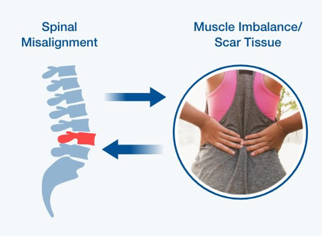 Why does your spine get misaligned?