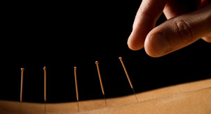 """Acupuncture! - keep an """"Open Mind"""""""