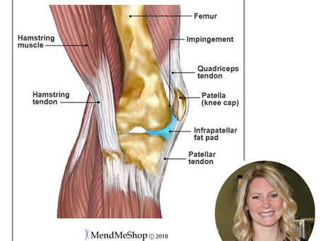 "INFRAPATELLAR FAT PAD SYNDROME ""Hoffa's Syndrome"""