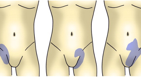 PAIN IN YOUR GROIN AREA? COULD BE A SPORTS HERNIA