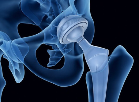 Home Therapy Exercises After Total Hip Replacement