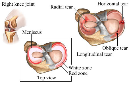I MAY HAVE A TORN MENISCUS, WHAT ARE MY OPTIONS?