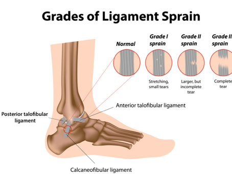 ANKLE PAIN? YOU MAY HAVE A LATERAL SPRAIN
