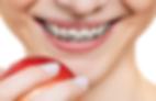 ortodoncia cuadrada 1.png