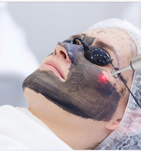 CARBON LASER PEEL with Basic Facial