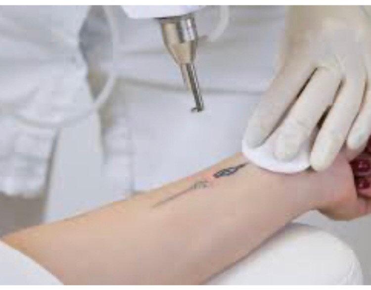 Monalisa Laser Tattoo Removal