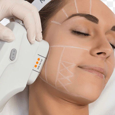 ULTHERA for Facial Area