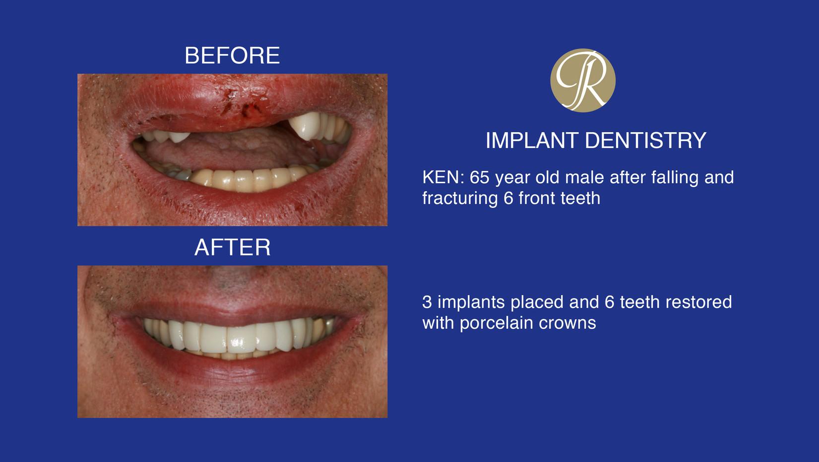 Ken_Implant.jpg