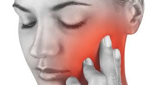 TMJ Disorder Frequently Asked Questions