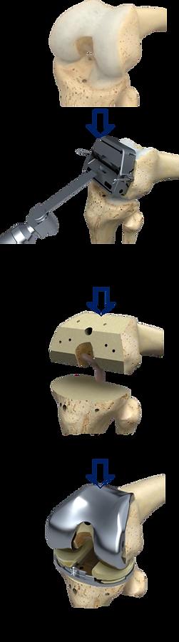 人工膝関節の手術.png
