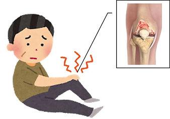 変形性膝関節症で痛みの出ている人.jpg
