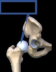 股関節の軟骨.png