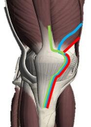 人工膝関節のアプローチ.jpg