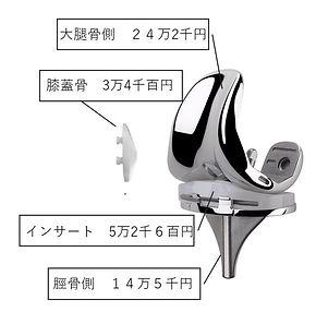 TKAの値段.JPG