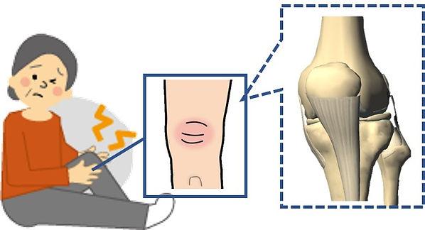 膝が痛い仕組み.jpg