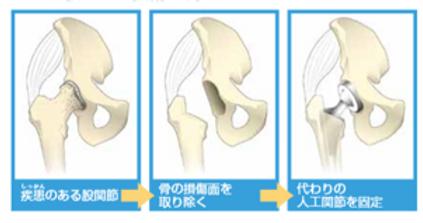 人工股関節の手術.png