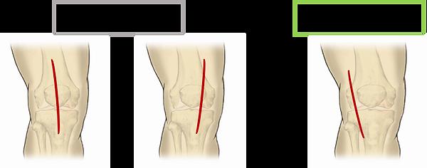外側皮切の人工膝関節.png