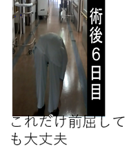 人工股関節THAの脱臼肢位.png
