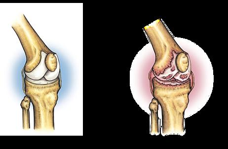 変形性膝関節症.png
