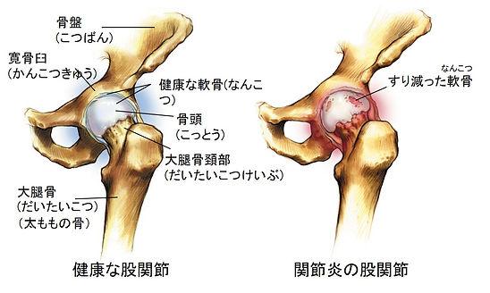変形性股関節症.jpg