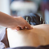 in-home-acupuncture-therapy-1.jpg