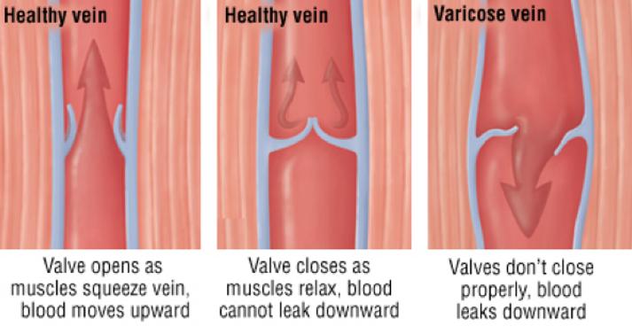 veins2.png