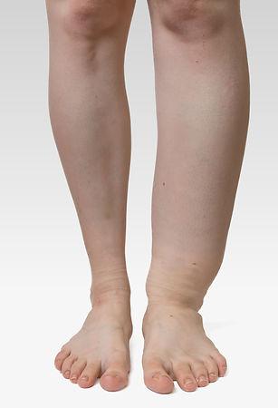 Leg Swelling.jpeg