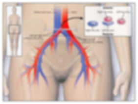 May-Thurner-Syndrome-Diagram.jpg