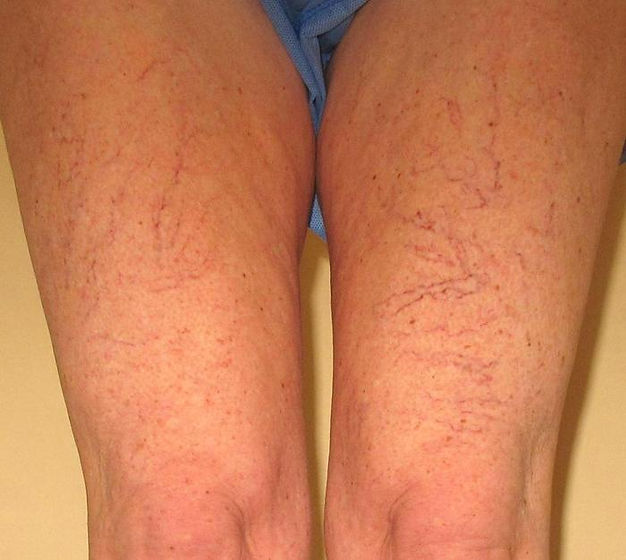 spiderveins.jpg