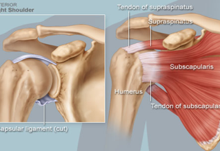 ROTATOR CUFF TEARS || Do I Need Surgery?