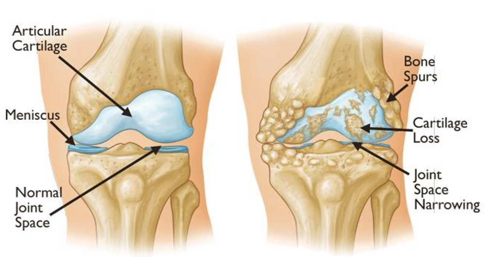Osteoarthritis often results in chondral loss and bone rubbing on bone.