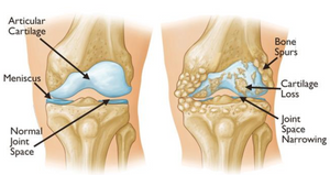 Osteoarthritis often results in chondral loss and bone rubbing on bone.